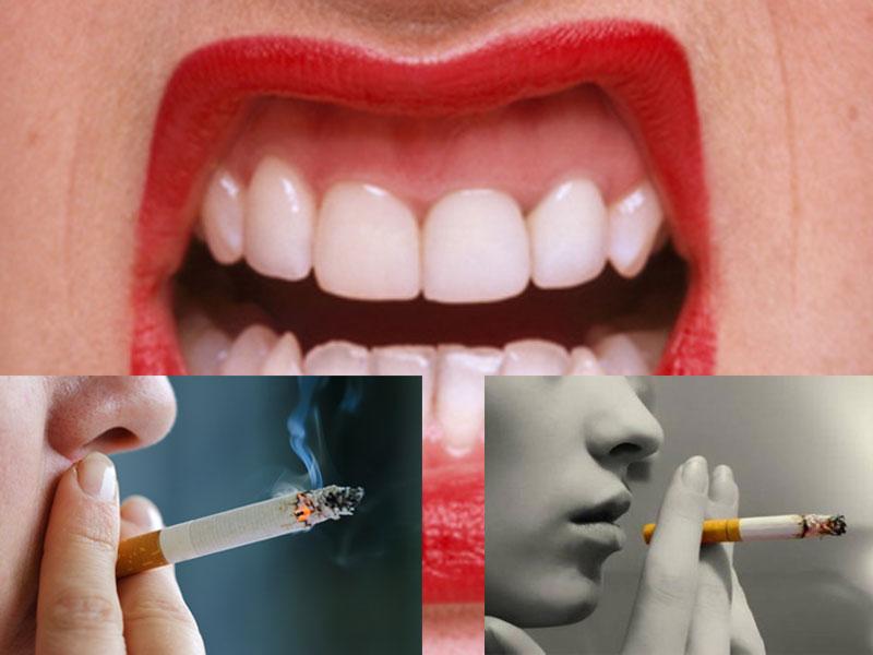 Sigara Önce Dişleri Etkiliyor
